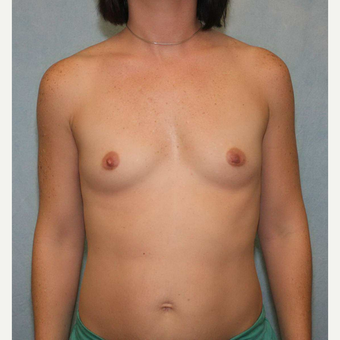 35-44 year old woman treated with Breast Augmentation before 3487556