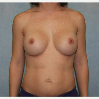 35-44 year old woman treated with Breast Augmentation after 3487556