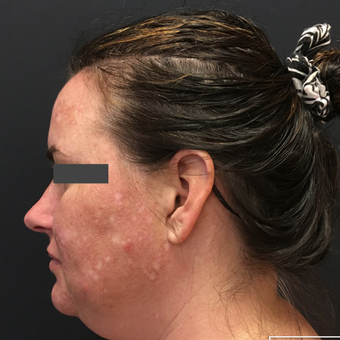 35-44 year old woman treated with Non-Surgical Neck Lift before 3665756