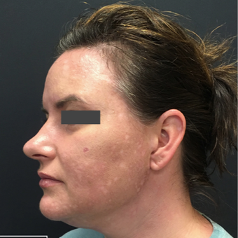 35-44 year old woman treated with Non-Surgical Neck Lift after 3665756