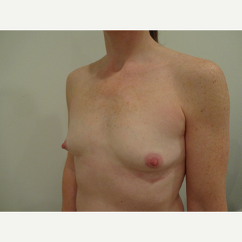 35-44 year old woman treated with Breast Augmentation before 3765767
