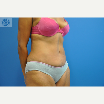 35-44 year old woman treated with Tummy Tuck after 3445941