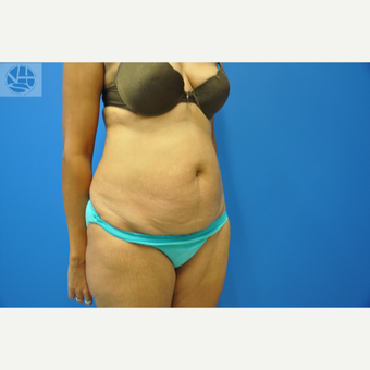 35-44 year old woman treated with Tummy Tuck before 3445941