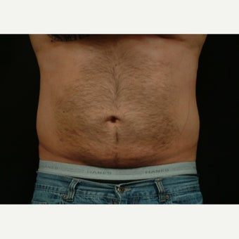 35-44 year old man treated with laser assisted liposuction after 2198550