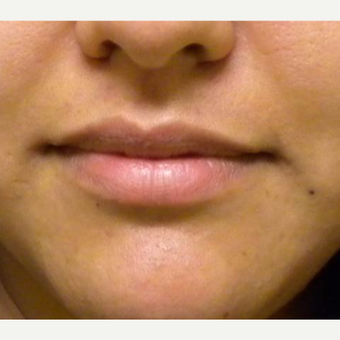 25-34 year old woman treated with Restylane before 3372386