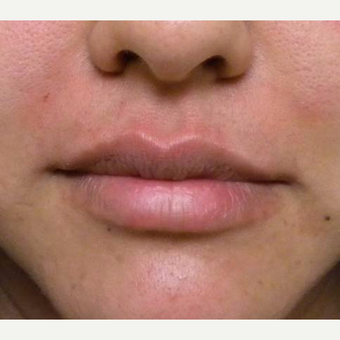 25-34 year old woman treated with Restylane after 3372386