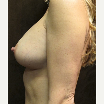 25-34 year old woman treated with Breast Augmentation after 2895763