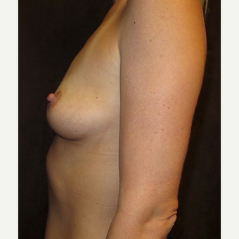 25-34 year old woman treated with Breast Augmentation before 2895763