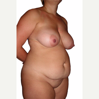 34 year old woman treated with Breast Lift before 3544776