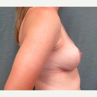 35-44 year old woman underwent Breast Reduction 1609701