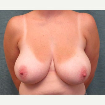 35-44 year old woman underwent Breast Reduction before 1609701