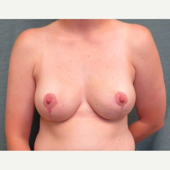 35-44 year old woman underwent Breast Reduction after 1609701