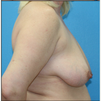 45-54 year old woman treated with Breast Lift with Implants before 3203825