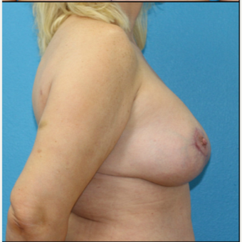 45-54 year old woman treated with Breast Lift with Implants after 3203825