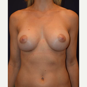 35-44 year old woman treated with Breast Augmentation after 3212069