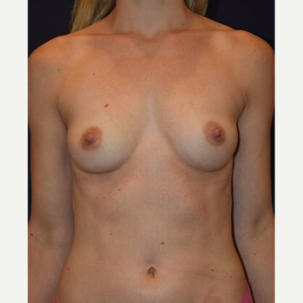 35-44 year old woman treated with Breast Augmentation before 3212069