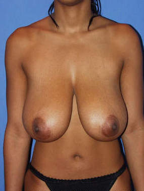 Breast Reduction Surgery before 1412018
