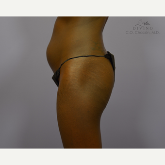 18-24 year old woman treated with Butt Augmentation before 3386574