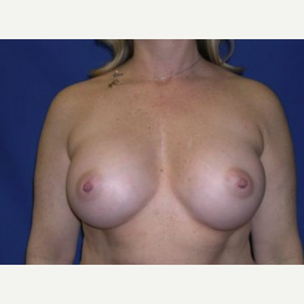 45-54 year old woman treated with Breast Augmentation after 3220104