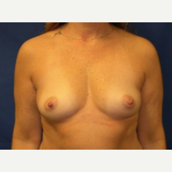 45-54 year old woman treated with Breast Augmentation before 3220104