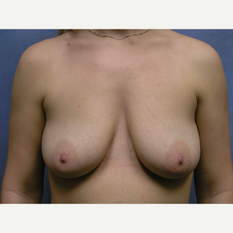 25-34 year old woman treated with Dual Plane Breast Augmentation before 3635476