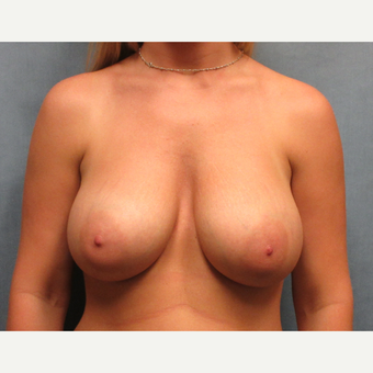 25-34 year old woman treated with Dual Plane Breast Augmentation after 3635476