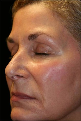 Fraxel - Melasma after 652389