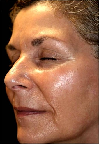 Fraxel - Melasma before 652389