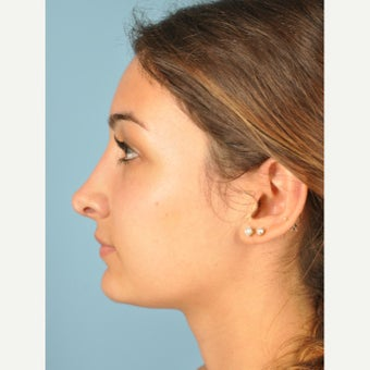18-24 year old woman treated with Rhinoplasty after 2455990
