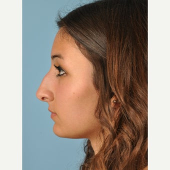 18-24 year old woman treated with Rhinoplasty before 2455990