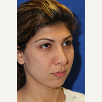 28 year old woman treated with Rhinoplasty and Chin Augmentation before 3843943