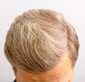 55-64 year old man treated with FUE Hair Transplant after 3671050