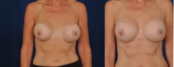 Breast Revision after 1430439