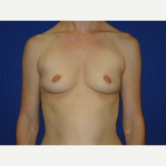 Breast Augmentation with 475 cc Silicone Implants before 3850707