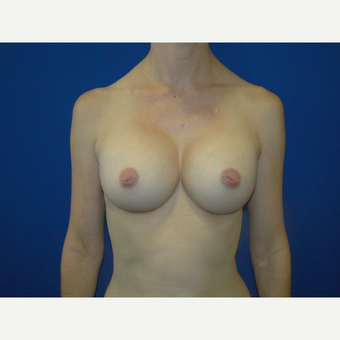 Breast Augmentation with 475 cc Silicone Implants after 3850707