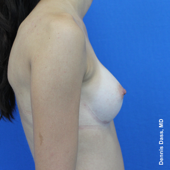25-34 year old woman treated with Sientra Breast Implants after 3353155
