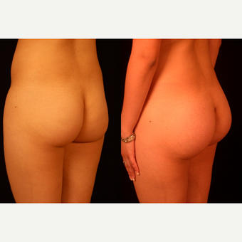 25-34 year old woman treated with Butt Implants before 3659468