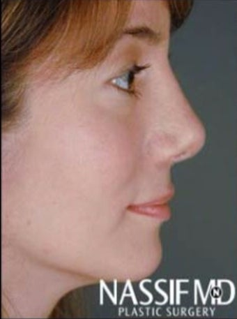 Female Revision Rhinoplasty  after 958923