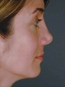 Female Revision Rhinoplasty  before 958923