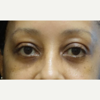 45-54 year old woman treated with Eye Bags Treatment after 3448320