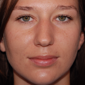 25-34 year old woman treated with Rhinoplasty before 3623988
