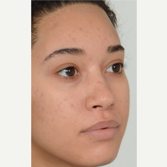 25-34 year old woman treated with Rhinoplasty before 3808562