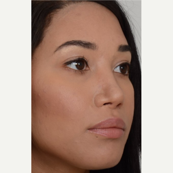 25-34 year old woman treated with Rhinoplasty after 3808562
