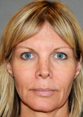Middle aged woman treated with Facelift before 1954115