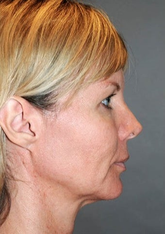 Middle aged woman treated with Facelift 1954115