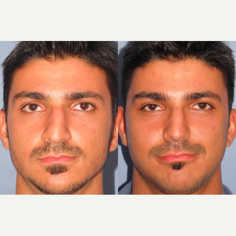 25-34 year old man treated with Rhinoplasty before 3521704