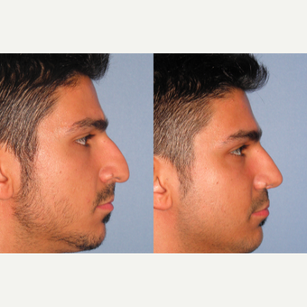 25-34 year old man treated with Rhinoplasty after 3521704