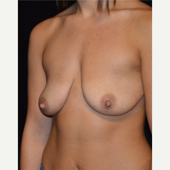 18-24 year old woman treated with Breast Lift with Implants before 3488200