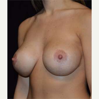 18-24 year old woman treated with Breast Lift with Implants after 3488200