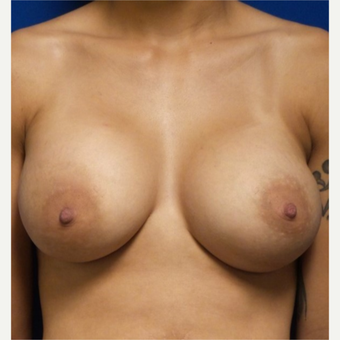 18-24 year old woman treated with Breast Augmentation after 3658971